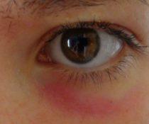 Симптомы аллергической реакции и причины ее возникновения на коже вокруг глаз