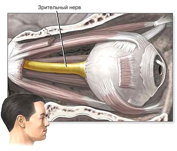 Атрофия нервных волокон глаз