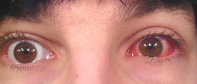 Один глаз не здоров