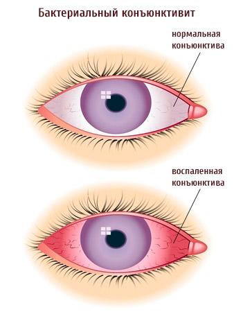 Сравнение здорового и больного глаза