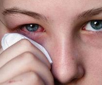 Что можно сделать для быстрого снятия аллергического отека с глаз
