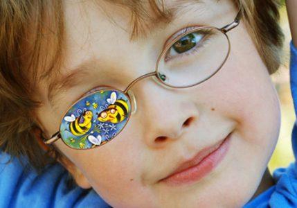 Амблиопия глаза: что это такое