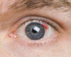 Что такое ангиопатия сосудов сетчатки глаза