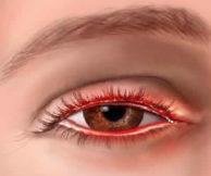 Симптомы проявления блефарита и методика лечения болезни