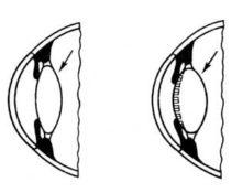 Роль аккомодации для процесса зрения