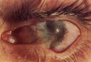 Сильный ожог глаза