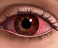 Что может вызвать ожог глаз