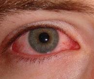 Какие существуют витамины в каплях для глаз