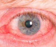 Из-за чего может произойти воспаление глаза