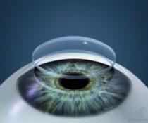 Заболевания роговицы глаза: симптомы, диагностика и лечение