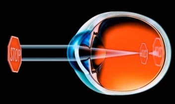 Форма глазного яблока при близорукости