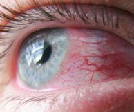 Что такое кератит глаза и какие разновидности существуют