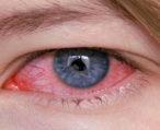 Симптомы и лечение аллергического конъюнктивита
