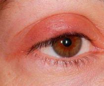 Лечение отека верхнего века одного глаза