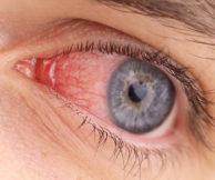 Конъюнктивит: заразен или нет?