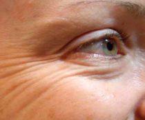 Как убрать морщины под глазами. Лучшие способы