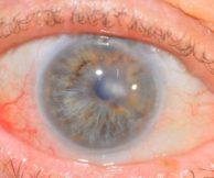 Что такое дистрофия роговицы глаза