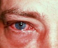 Симптомы и лечение вирусного конъюнктивита.