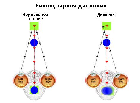 Направление глаз при диплопии