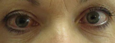 покраснение одного глаза
