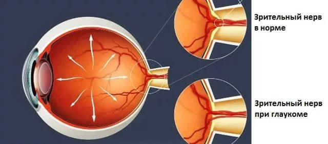 сравнение зрительного нерва нормального и при глаукоме