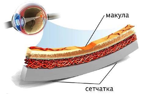 макулодистрофия 4