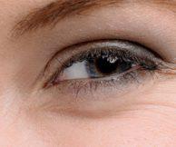 Боремся с гусиными лапками вокруг глаз
