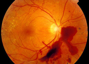 Retina damage from diabetes. Ophthalmoscope image of diabetic retinopathy, where severe damage to the retina has been caused by diabetes. Red blood vessels are seen emerging from the yellow optic disc (right). The red patch is a serious haemorrhage, where blood has leaked from blocked capillaries. This has caused a reduction in blood flow to other areas of the retina, leading to the proliferative growth of new capillaries (left). The yellow patches (left) are fatty exudates, caused by the increased permeability of blood vessels. Diabetic retinopathy may lead to blindness if left untreated. Bleeding can be treated by laser photocoagulation, and blood sugar level maintenance can slow the disease's progress.