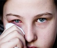 Лечение конъюнктивита антибиотиками