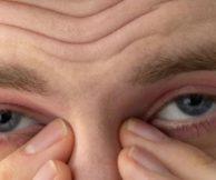 Самые частые заболевание глаз у человека