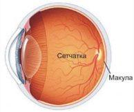 Ангиосклероз сетчатки глаза: причины, симптомы, лечение