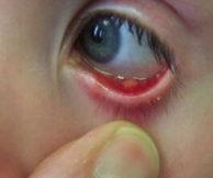 Чем лечить внутренний ячмень на глазу
