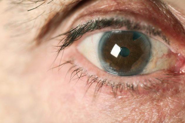 глаукома 3