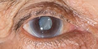 глаукома 5