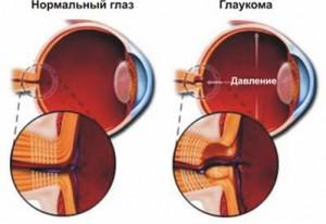 глаукома 6
