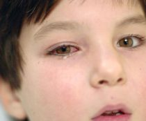 Воспалился глаз у ребенка: возможные причины, лечение