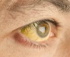 Причины пожелтения белков глаз