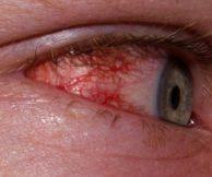 Глаз покраснел и слезится: причины, последствия и лечение
