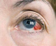 Лечение лопнувшего сосуда в глазах каплями