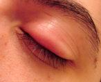 Как снять отек с глаза после укуса комара?