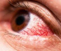 Причины покраснения глаз от линз, и как с этим бороться