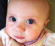 Причины покраснения век у новорожденного и способы лечения