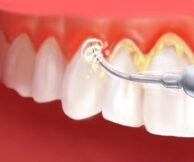 Как правильно ухаживать за зубами: 5 советов для белоснежной улыбки